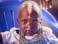 An up-close photo of a Ugandan boy with blue eyes and a white stripe of skin down his forehead.